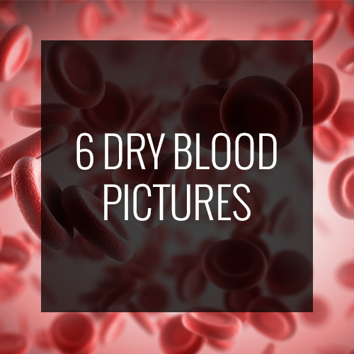 6-dry-blood-pictures
